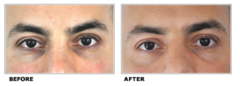 Dark Under Eye Circles Treatment Toronto Cosmetic Clinic