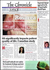 The Chronicle of Skin and Allergy - March 2015 | Rosacea Therapy