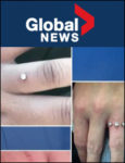 Global News: Piercing fingers instead of engagement ring | March 20, 2018