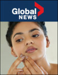 Global News: Adult Acne | April 8, 2018
