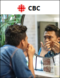 CBC: Causes of Adult Acne | August 21, 2019